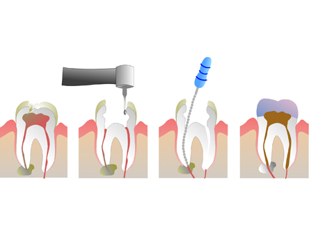 Root Canal in Ranchi
