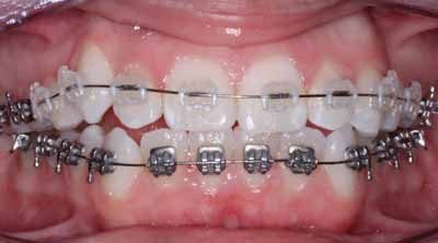 Orthodontist in Ranchi, Dental Implants in Ranchi, Sushruta Dental