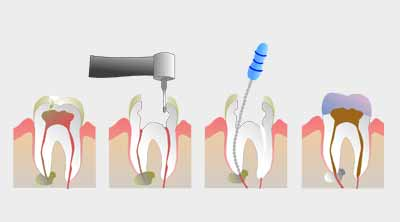 Best dentist in Ranchi, Dentist in Ranchi, endodontics