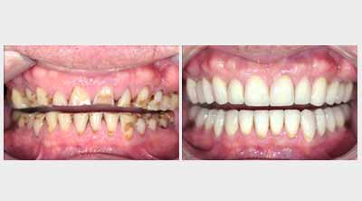 Dental Implants in Ranchi, Dentist in Gumla, Full Mouth Rehabilitation