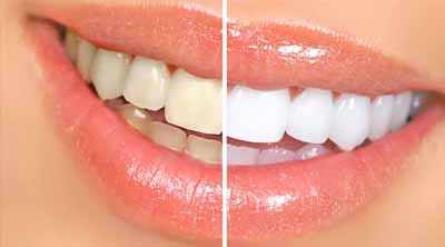 Dentist in Gumla, Dental clinic in Ranchi, Bleaching