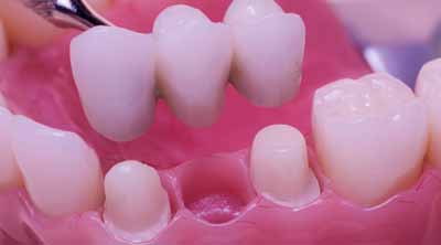Dentist in Gumla, Best dental clinic in Ranchi, fixed prosthesis