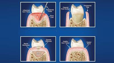 Dental clinic in Ranchi, Best dentist in Ranchi, periodontics