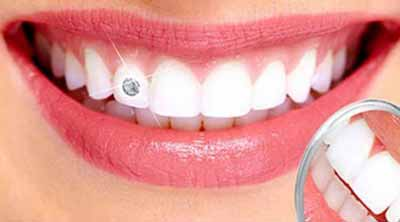 Dental clinic in Ranchi, Dentist in Ranchi, Dental jewellery